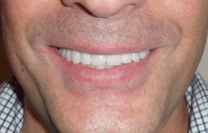 Zambetul pacientului la sfarsitul tratamentului