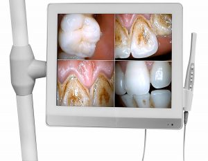 camera intraorala