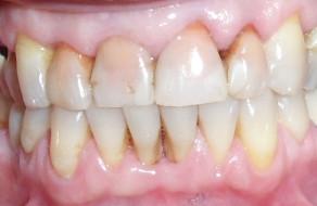 Dinti frontali maxilari cu discromie