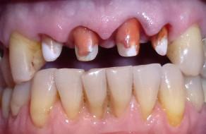 Dintii frontali maxilari reconstituiti si slefuiti