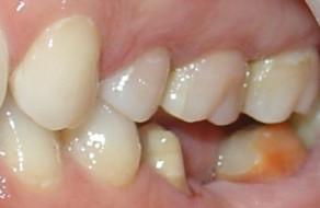 Lipsa molarului 1 mandibubular