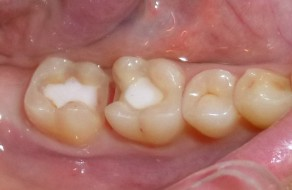 Cavitati rezultate in urma exerezei dentinei alterate si a prepararii pentru inlay-uri