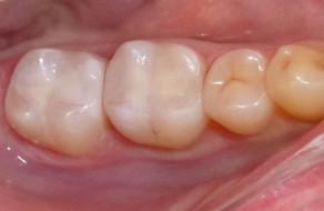 Inlay-urile cimentate pe dinti