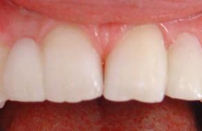 Dupa tratament ortodontic si aplicare de punti colate