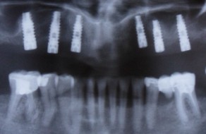Radiografia panoramica cu implanturile inserate