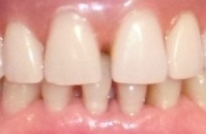 Lucrarea definitiva pe implanturi la maxilar