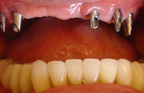 Bonturile protetice pe implanturi slefuite