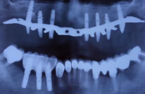 Radiografia cu implaturile inserate