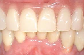 Lucrarile definitive pe implanturi si dinti pe ambele arcade