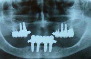 Radiografia panoramica dupa aplicarea implanturilor