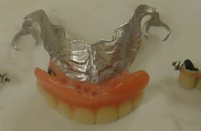 Lucrarile pe dinti/implanturi si proteza scheletata la maxilar
