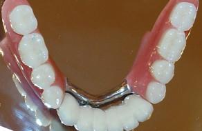 Lucrarea metalo-ceramica pe implanturi si proteza scheletata la mandibula