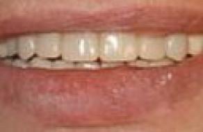 Zambetul pacientei